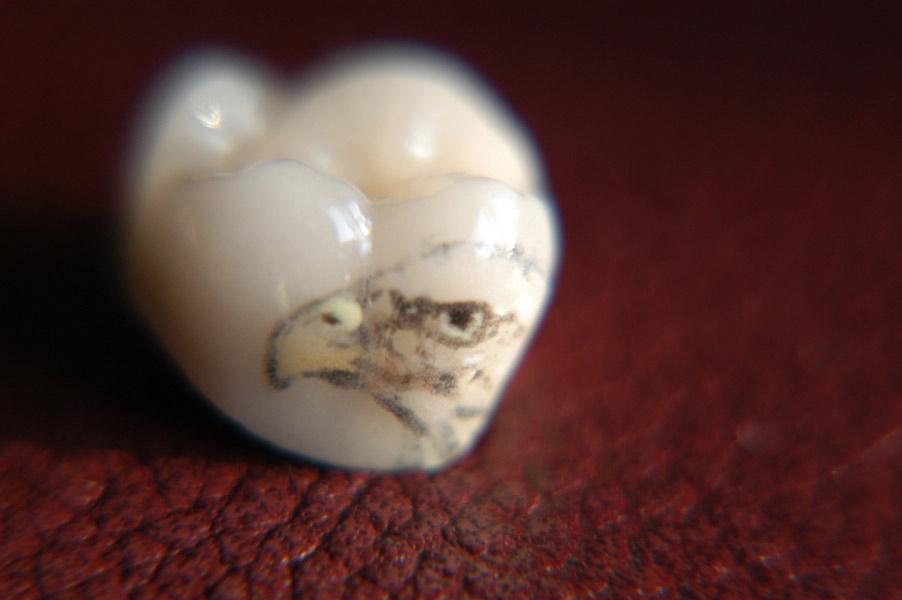 Зубные татуировки.